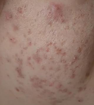 痘痘长不停?怎样改善和治疗长痘痘问题